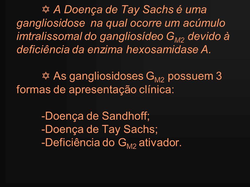 A Doença de Tay Sachs é uma gangliosidose na qual ocorre um acúmulo imtralissomal do gangliosídeo G M2 devido à deficiência da enzima hexosamidase A.