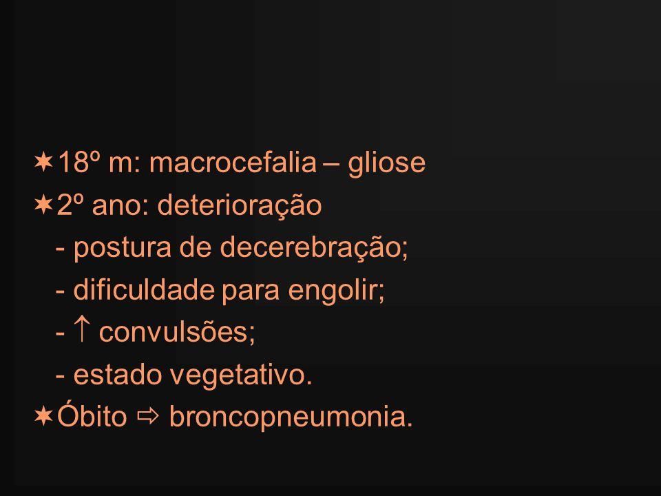 18º m: macrocefalia – gliose 2º ano: deterioração - postura de decerebração; - dificuldade para engolir; - convulsões; - estado vegetativo. Óbito bron