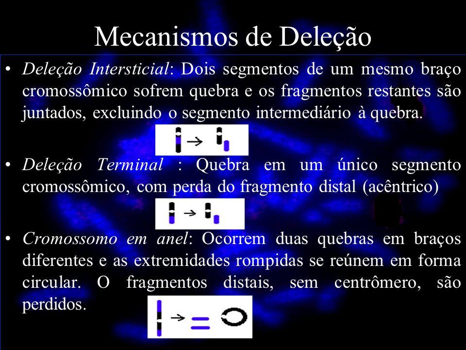 Mecanismos de Deleção Deleção Intersticial: Dois segmentos de um mesmo braço cromossômico sofrem quebra e os fragmentos restantes são juntados, exclui