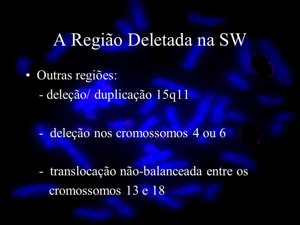 Outras regiões: - deleção/ duplicação 15q11 - deleção nos cromossomos 4 ou 6 - translocação não-balanceada entre os cromossomos 13 e 18 A Região Delet