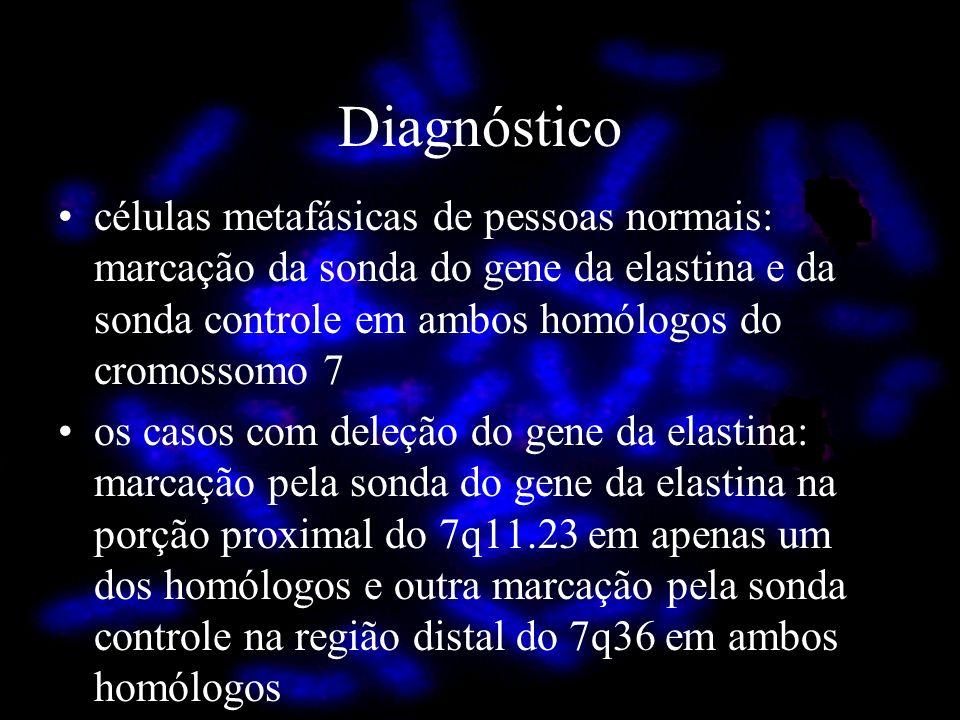 Diagnóstico células metafásicas de pessoas normais: marcação da sonda do gene da elastina e da sonda controle em ambos homólogos do cromossomo 7 os ca