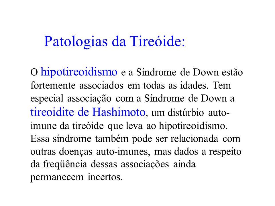 Patologias da Tireóide: O hipotireoidismo e a Síndrome de Down estão fortemente associados em todas as idades. Tem especial associação com a Síndrome