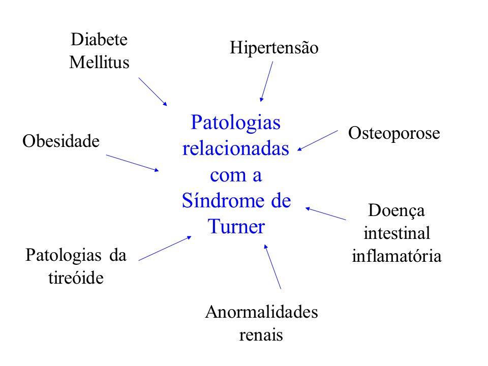 Patologias relacionadas com a Síndrome de Turner Diabete Mellitus Patologias da tireóide Obesidade Hipertensão Osteoporose Anormalidades renais Doença