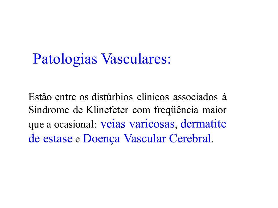 Patologias Vasculares: Estão entre os distúrbios clínicos associados à Síndrome de Klinefeter com freqüência maior que a ocasional: veias varicosas, d