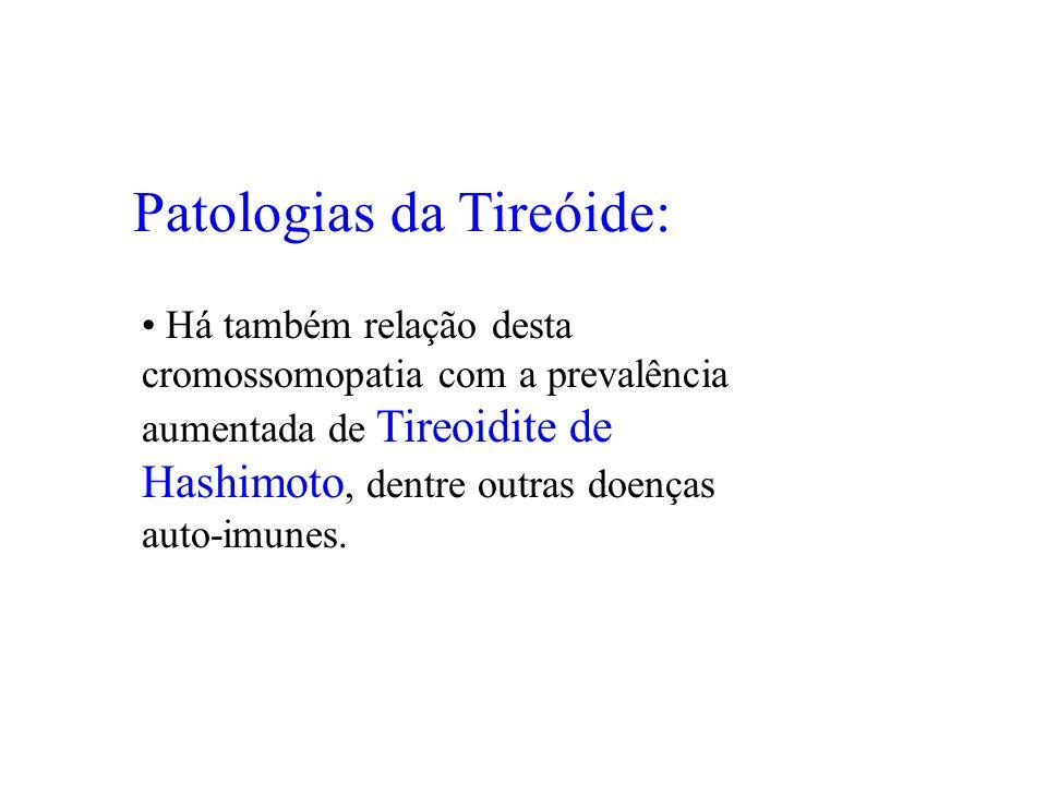 Patologias da Tireóide: Há também relação desta cromossomopatia com a prevalência aumentada de Tireoidite de Hashimoto, dentre outras doenças auto-imu