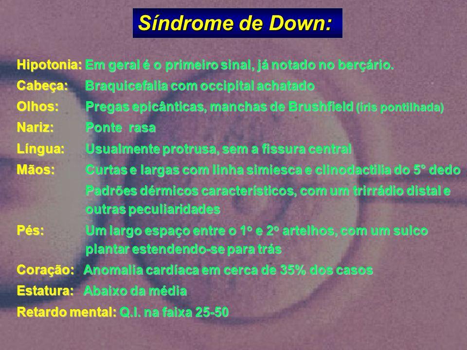 Síndrome de Down: Hipotonia: Em geral é o primeiro sinal, já notado no berçário. Cabeça: Braquicefalia com occipital achatado Olhos: Pregas epicântica