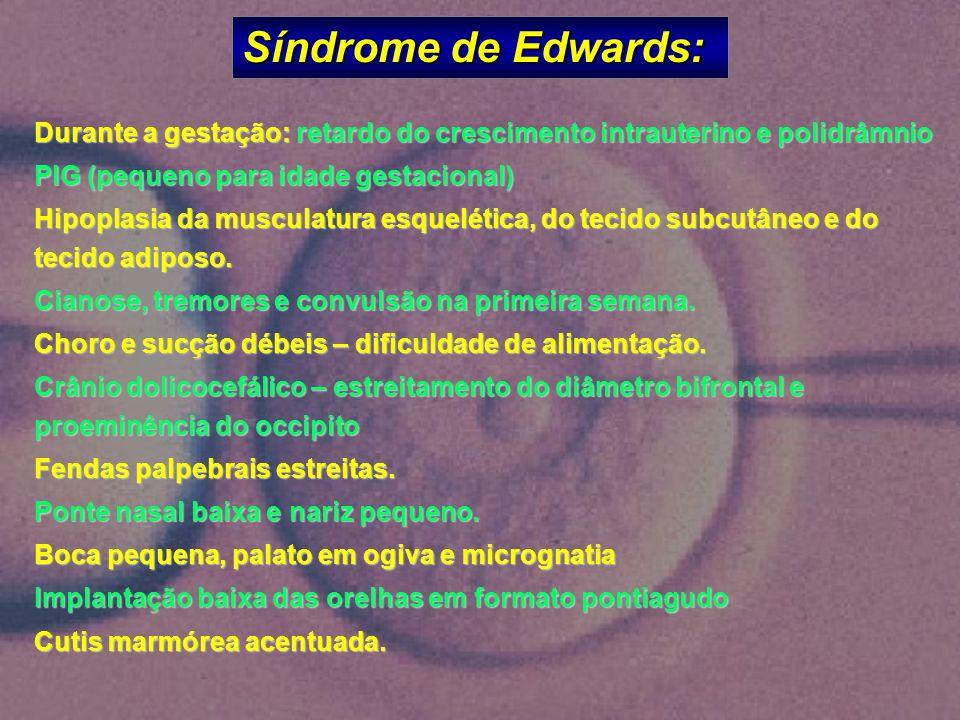 Síndrome de Edwards: Durante a gestação: retardo do crescimento intrauterino e polidrâmnio PIG (pequeno para idade gestacional) Hipoplasia da musculat