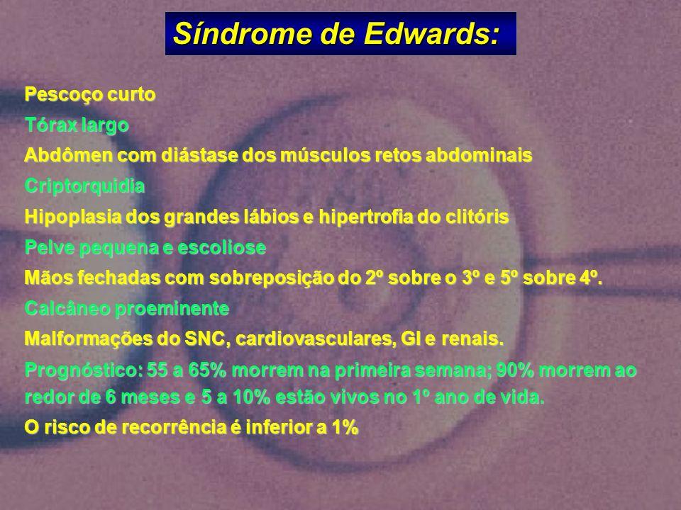 Síndrome de Edwards: Pescoço curto Tórax largo Abdômen com diástase dos músculos retos abdominais Criptorquidia Hipoplasia dos grandes lábios e hipert