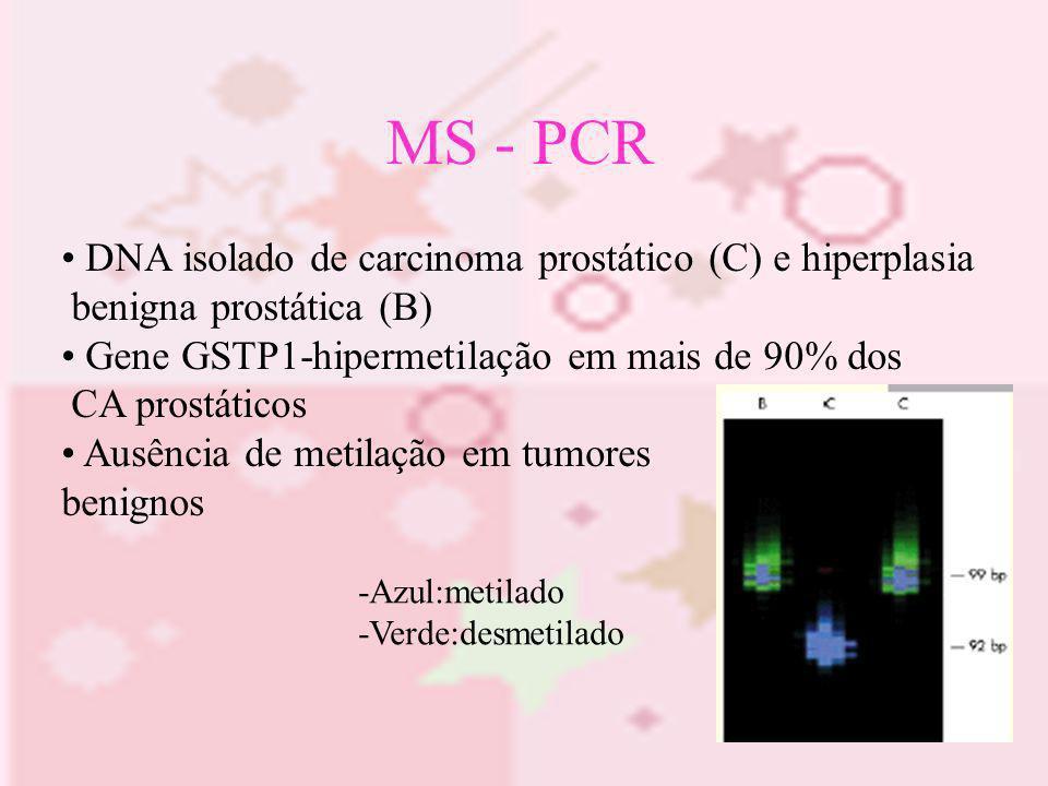 MS - PCR DNA isolado de carcinoma prostático (C) e hiperplasia benigna prostática (B) Gene GSTP1-hipermetilação em mais de 90% dos CA prostáticos Ausê