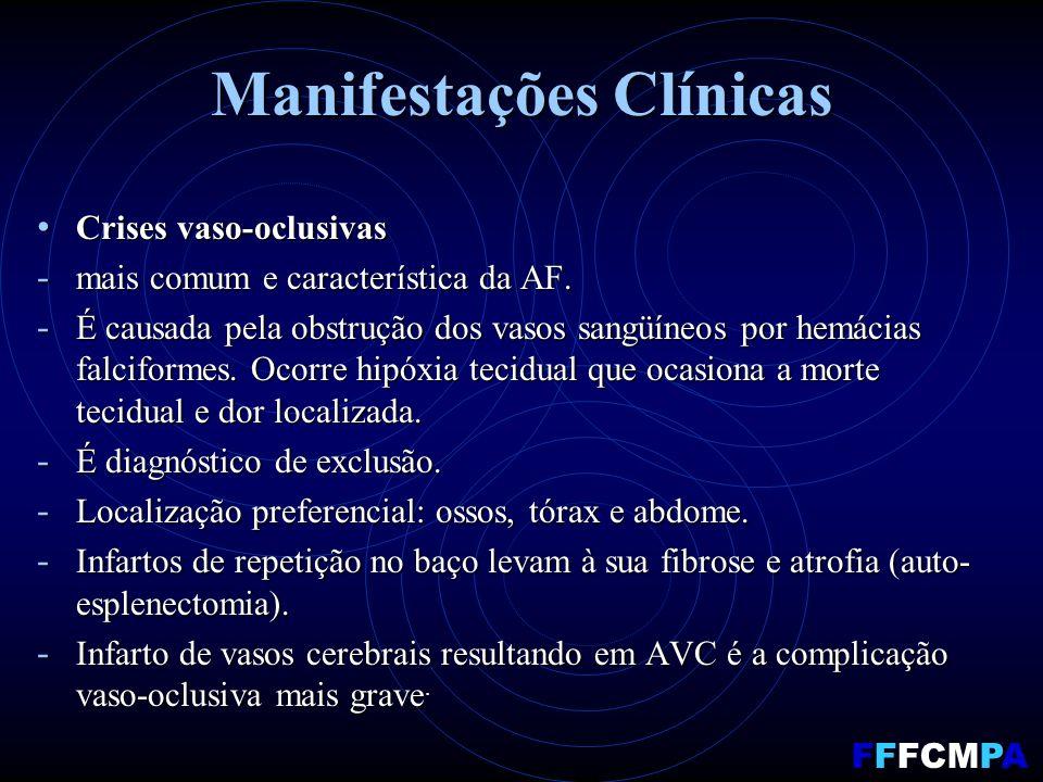 Manifestações Clínicas Crises vaso-oclusivas Crises vaso-oclusivas - mais comum e característica da AF.