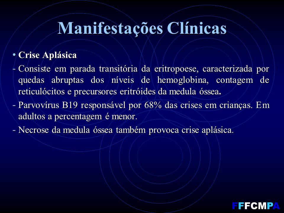 Manifestações Clínicas Crise Aplásica Crise Aplásica - Consiste em parada transitória da eritropoese, caracterizada por quedas abruptas dos níveis de hemoglobina, contagem de reticulócitos e precursores eritróides da medula óssea.