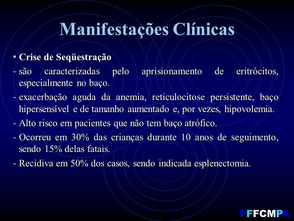 Manifestações Clínicas Crise de Seqüestração Crise de Seqüestração - são caracterizadas pelo aprisionamento de eritrócitos, especialmente no baço.