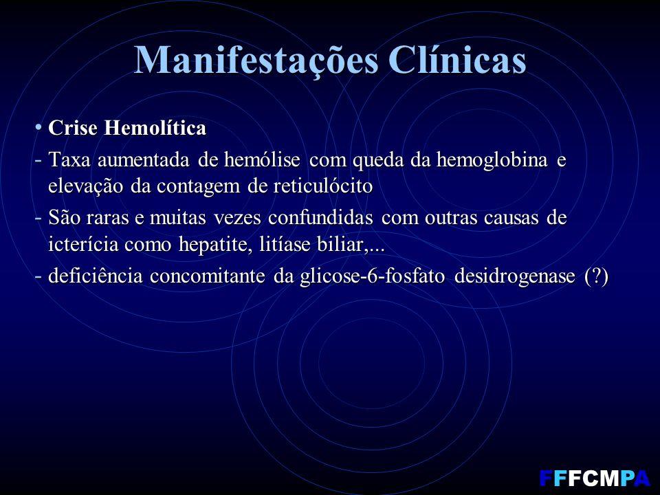 Manifestações Clínicas Crise Hemolítica Crise Hemolítica - Taxa aumentada de hemólise com queda da hemoglobina e elevação da contagem de reticulócito