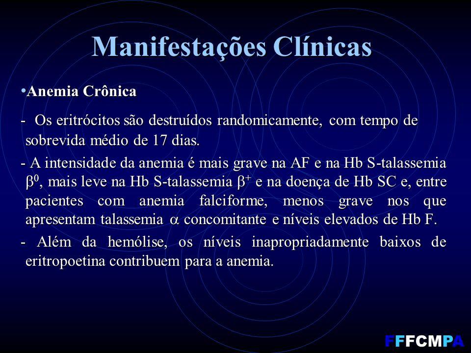 Manifestações Clínicas Anemia Crônica Anemia Crônica - Os eritrócitos são destruídos randomicamente, com tempo de sobrevida médio de 17 dias.