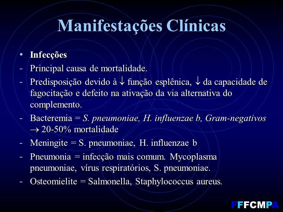 Manifestações Clínicas Infecções Infecções - Principal causa de mortalidade.