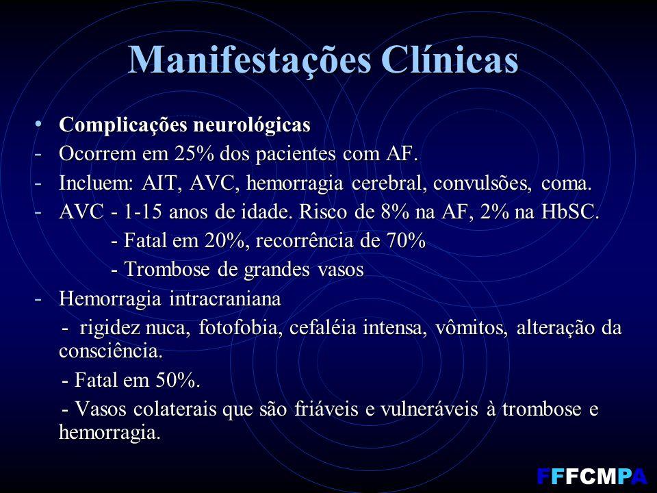 Manifestações Clínicas Complicações neurológicas Complicações neurológicas - Ocorrem em 25% dos pacientes com AF. - Incluem: AIT, AVC, hemorragia cere