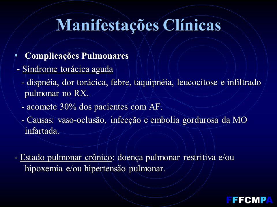 Manifestações Clínicas Complicações Pulmonares Complicações Pulmonares - Síndrome torácica aguda - Síndrome torácica aguda - dispnéia, dor torácica, febre, taquipnéia, leucocitose e infiltrado pulmonar no RX.