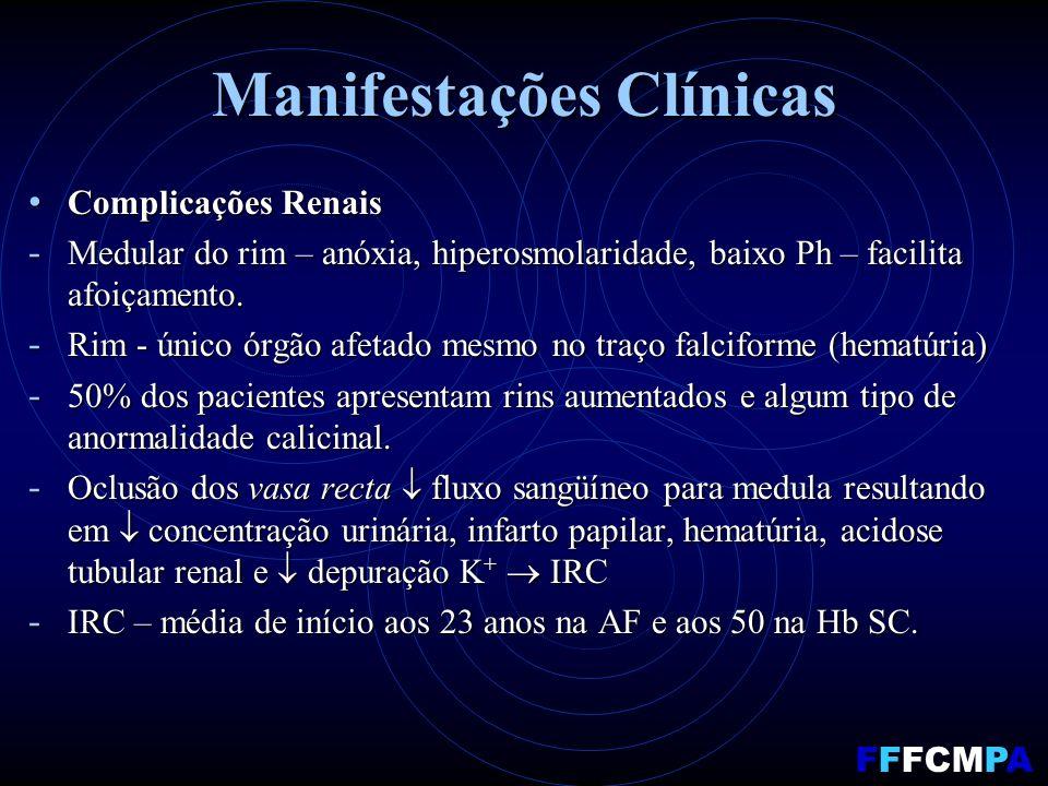 Manifestações Clínicas Complicações Renais Complicações Renais - Medular do rim – anóxia, hiperosmolaridade, baixo Ph – facilita afoiçamento.