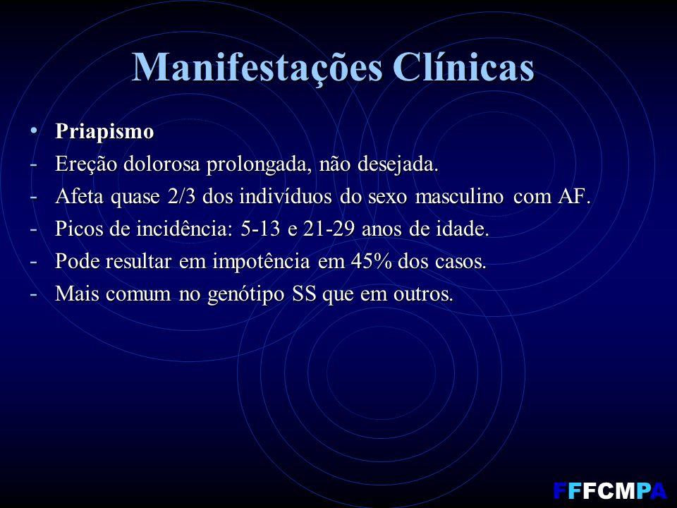 Manifestações Clínicas Priapismo Priapismo - Ereção dolorosa prolongada, não desejada. - Afeta quase 2/3 dos indivíduos do sexo masculino com AF. - Pi