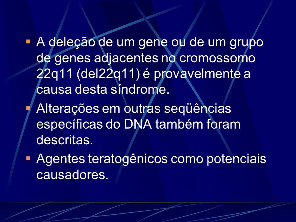 Síndrome de genes contíguos Argumentação: pacientes com fenótipo compatível com DGS apresentam deleções não sobreponíveis nenhum segmento da região TDR está deletado em todos os pacientes