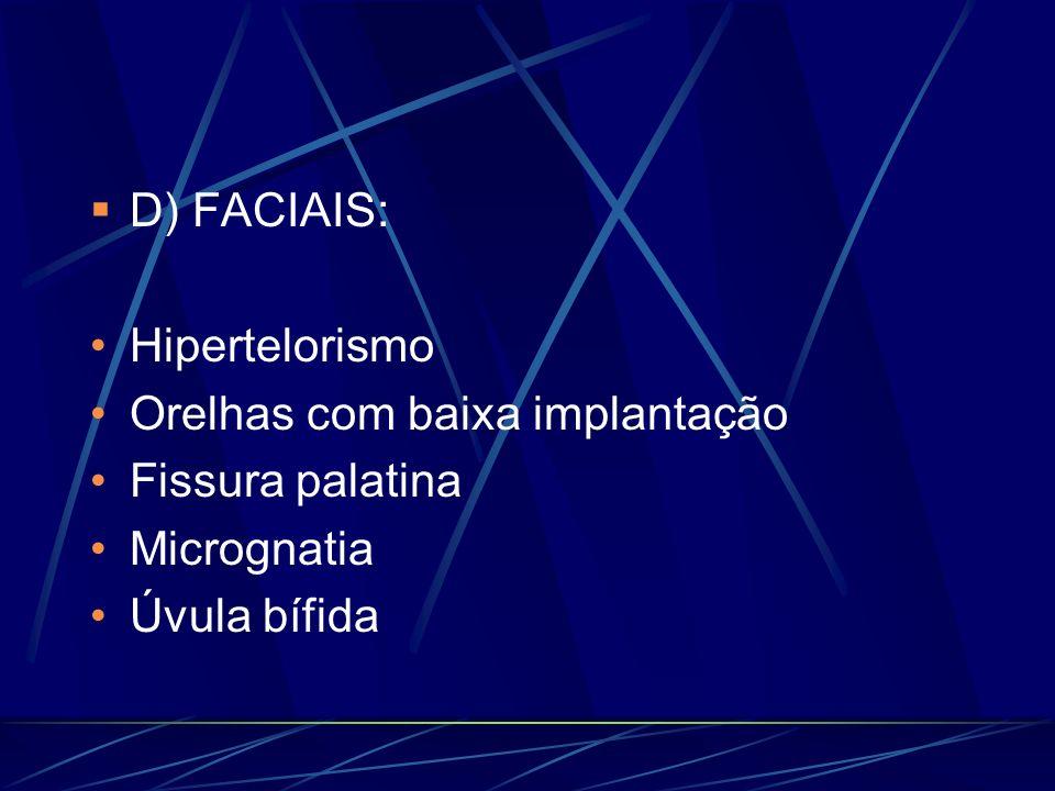D) FACIAIS: Hipertelorismo Orelhas com baixa implantação Fissura palatina Micrognatia Úvula bífida