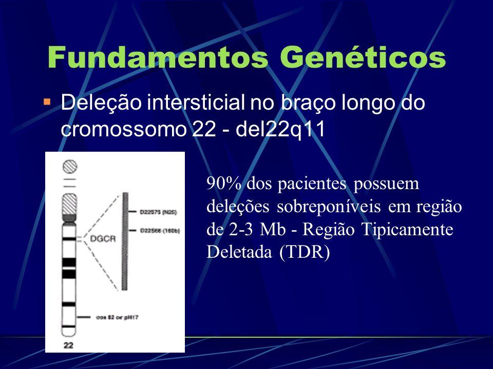 Fundamentos Genéticos Deleção intersticial no braço longo do cromossomo 22 - del22q11 90% dos pacientes possuem deleções sobreponíveis em região de 2-