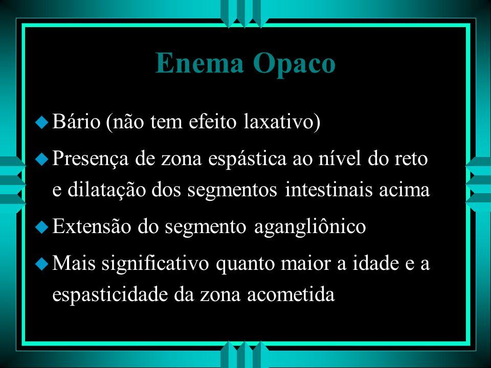 Enema Opaco u Bário (não tem efeito laxativo) u Presença de zona espástica ao nível do reto e dilatação dos segmentos intestinais acima u Extensão do