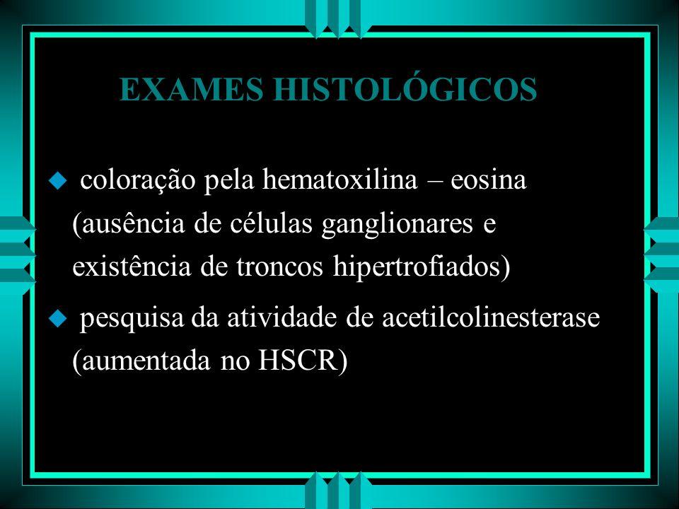 EXAMES HISTOLÓGICOS u coloração pela hematoxilina – eosina (ausência de células ganglionares e existência de troncos hipertrofiados) u pesquisa da ati