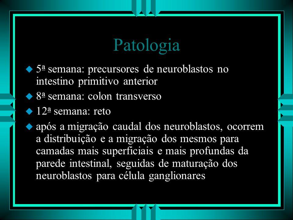 Patologia u 5 a semana: precursores de neuroblastos no intestino primitivo anterior u 8 a semana: colon transverso u 12 a semana: reto u após a migraç