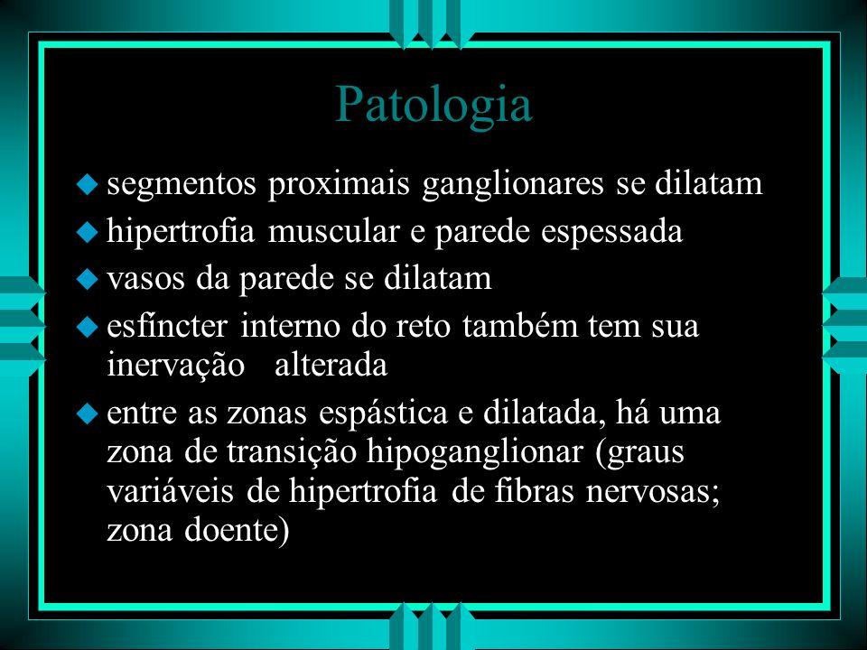 Patologia u segmentos proximais ganglionares se dilatam u hipertrofia muscular e parede espessada u vasos da parede se dilatam u esfíncter interno do