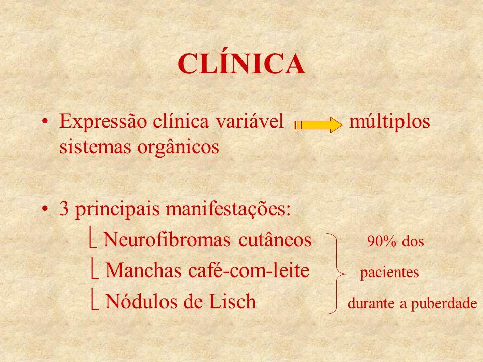 CLÍNICA Expressão clínica variável múltiplos sistemas orgânicos 3 principais manifestações: Neurofibromas cutâneos 90% dos Manchas café-com-leite pacientes Nódulos de Lisch durante a puberdade