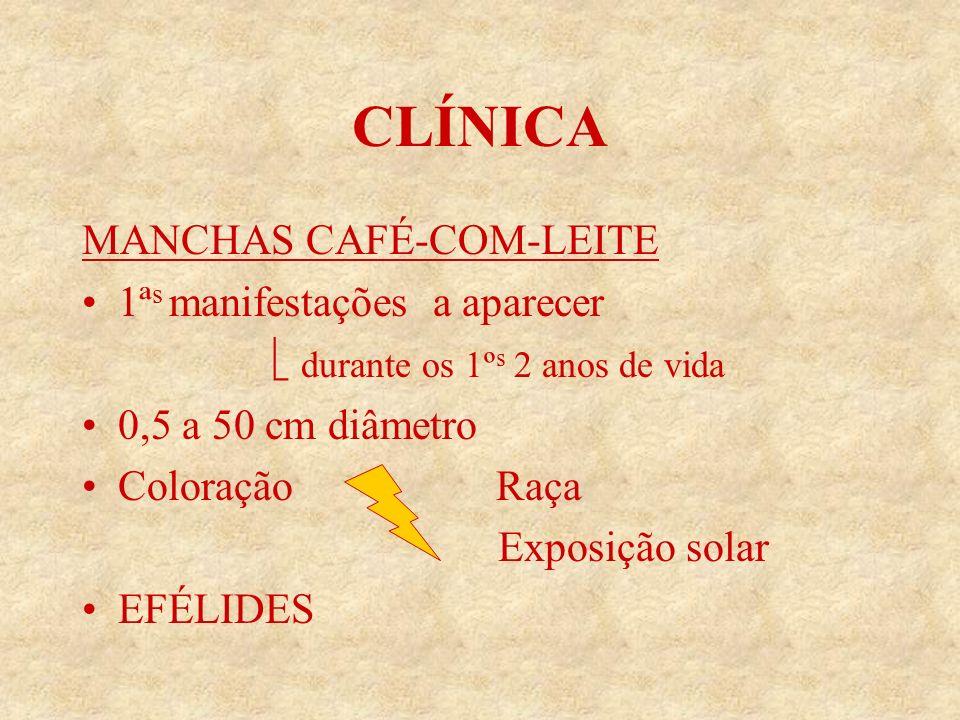 CLÍNICA MANCHAS CAFÉ-COM-LEITE 1ª s manifestações a aparecer durante os 1º s 2 anos de vida 0,5 a 50 cm diâmetro Coloração Raça Exposição solar EFÉLIDES