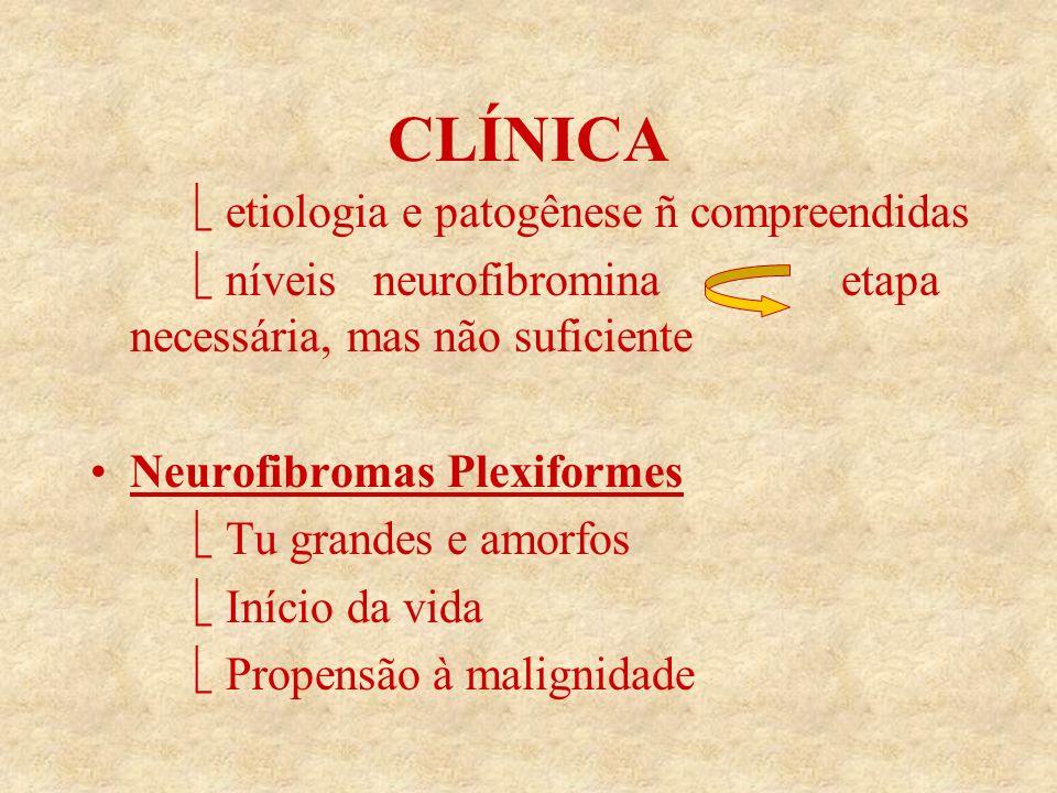 CLÍNICA etiologia e patogênese ñ compreendidas níveis neurofibromina etapa necessária, mas não suficiente Neurofibromas Plexiformes Tu grandes e amorfos Início da vida Propensão à malignidade