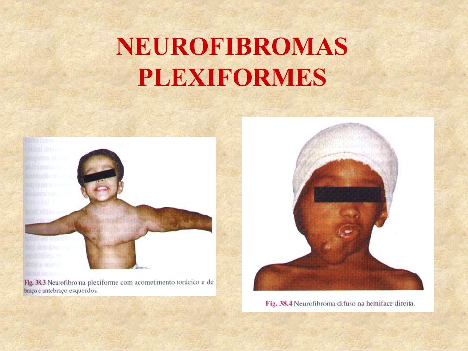 NEUROFIBROMAS PLEXIFORMES