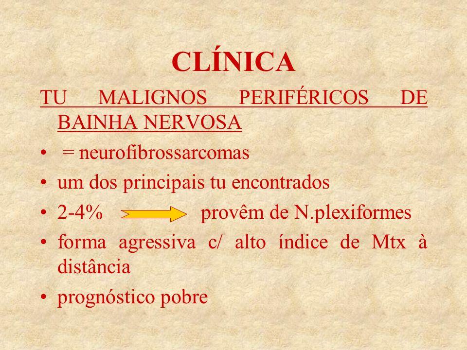 CLÍNICA TU MALIGNOS PERIFÉRICOS DE BAINHA NERVOSA = neurofibrossarcomas um dos principais tu encontrados 2-4% provêm de N.plexiformes forma agressiva c/ alto índice de Mtx à distância prognóstico pobre