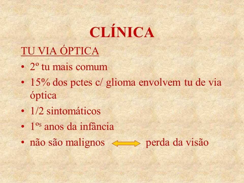 CLÍNICA TU VIA ÓPTICA 2º tu mais comum 15% dos pctes c/ glioma envolvem tu de via óptica 1/2 sintomáticos 1º s anos da infância não são malignos perda da visão