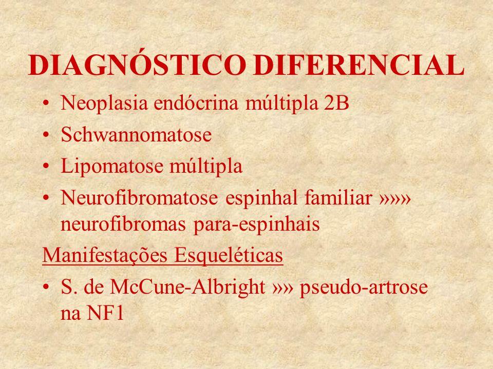 DIAGNÓSTICO DIFERENCIAL Neoplasia endócrina múltipla 2B Schwannomatose Lipomatose múltipla Neurofibromatose espinhal familiar »»» neurofibromas para-espinhais Manifestações Esqueléticas S.