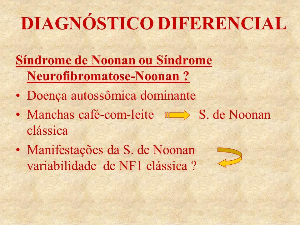 DIAGNÓSTICO DIFERENCIAL Síndrome de Noonan ou Síndrome Neurofibromatose-Noonan .
