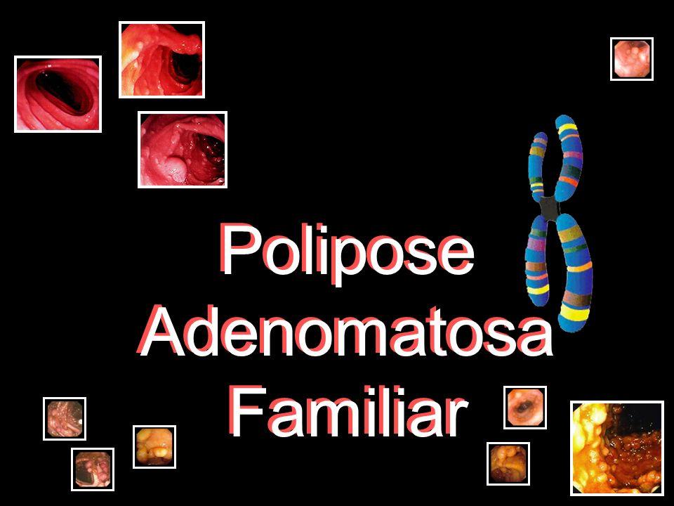 FAP clássica: mutação + freqüente: códon 1309 associada c/ elevado nº adenomas colônicos em idade precoce (média de idade de 20 anos) mutações entre os códons 168-1580 (excluindo o 1309) apresentam sintomas numa média de idade de 30 anos mutação 5´do códon 168 e 3´do códon 1580 se apresentam com uma idade média de 52 anos Freidl, 2001