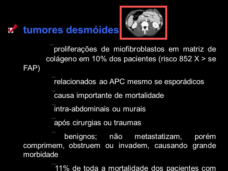 tumores desmóides proliferações de miofibroblastos em matriz de colágeno em 10% dos pacientes (risco 852 X > se FAP) relacionados ao APC mesmo se espo