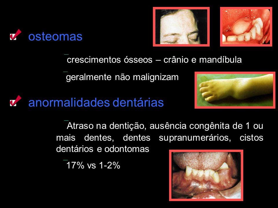 osteomas crescimentos ósseos – crânio e mandíbula geralmente não malignizam anormalidades dentárias Atraso na dentição, ausência congênita de 1 ou mai