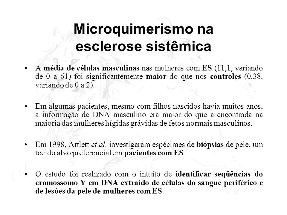 Microquimerismo na esclerose sistêmica A média de células masculinas nas mulheres com ES (11,1, variando de 0 a 61) foi significantemente maior do que