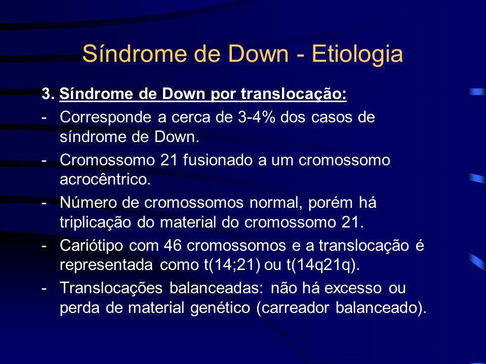 Síndrome de Down – Trissomia 21