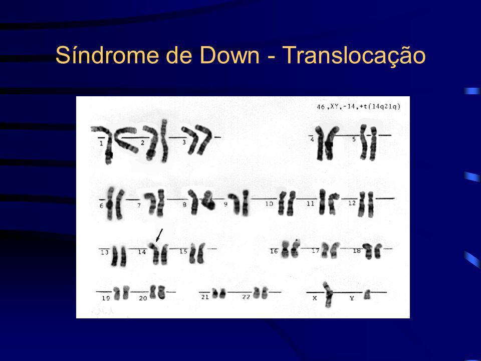 Síndrome de Down - Etiologia -Translocações podem ser herdadas análise dos cromossomos parentais (possível carreador). -Translocações com cromossomos