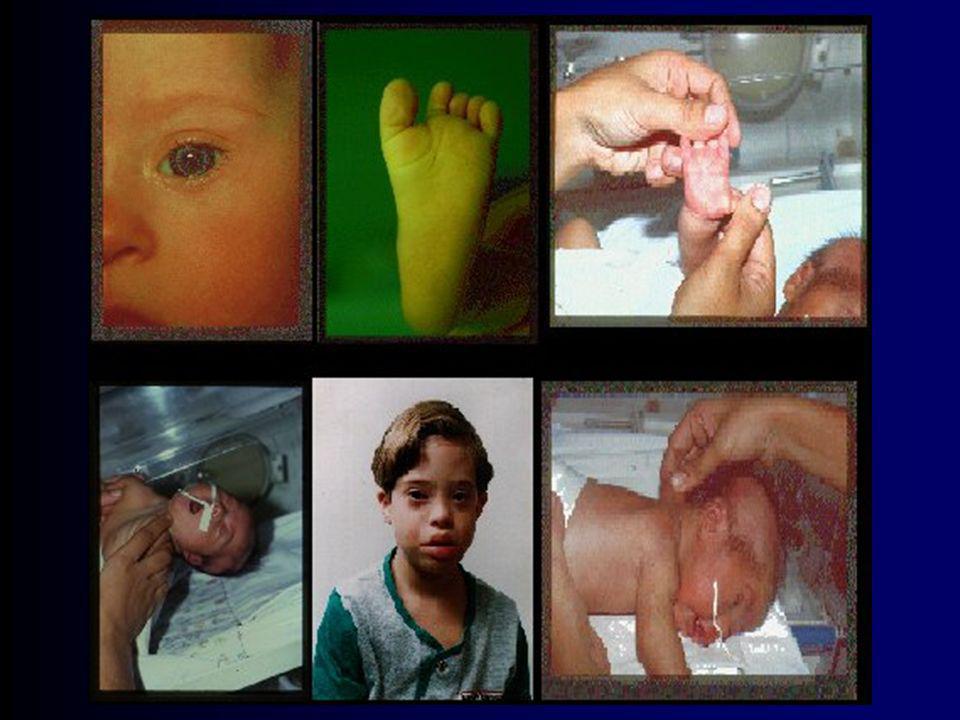 Aspectos da Infância Aspectos menos prevalentes: –braquicefalia –base nasal alargada –clinodactilia do quinto digital –linha plantar entre 1 e 2 dedos
