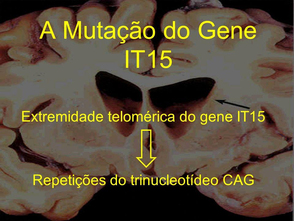 A Mutação do Gene IT15 Extremidade telomérica do gene IT15 Repetições do trinucleotídeo CAG