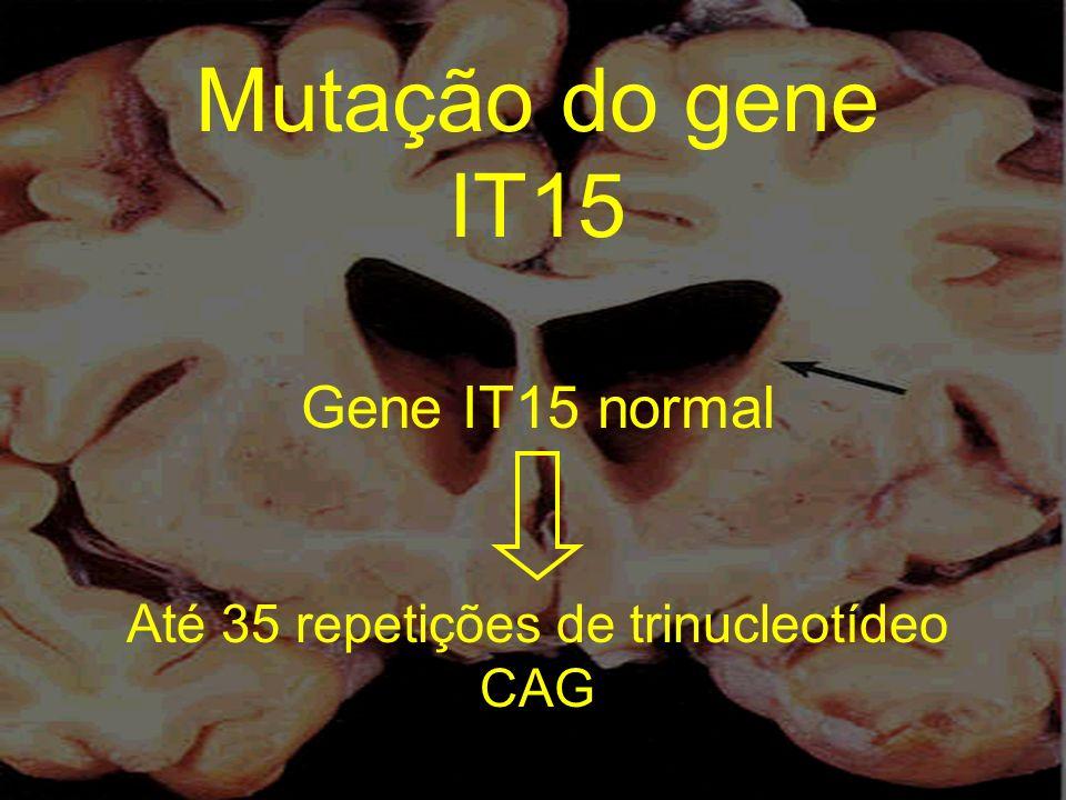 Mutação do gene IT15 Gene IT15 normal Até 35 repetições de trinucleotídeo CAG