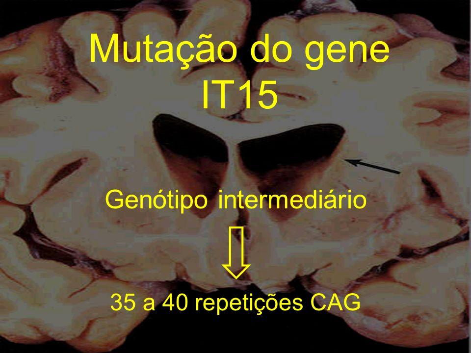 Mutação do gene IT15 Genótipo intermediário 35 a 40 repetições CAG