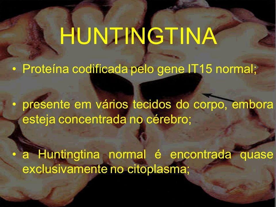 HUNTINGTINA Proteína codificada pelo gene IT15 normal; presente em vários tecidos do corpo, embora esteja concentrada no cérebro; a Huntingtina normal
