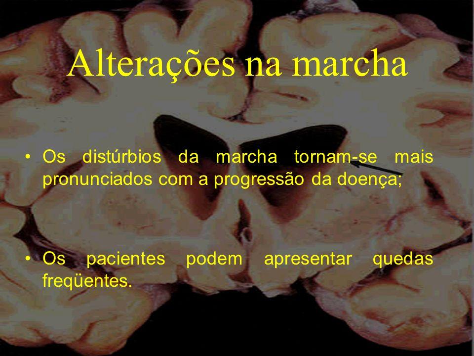 Alterações na marcha Os distúrbios da marcha tornam-se mais pronunciados com a progressão da doença; Os pacientes podem apresentar quedas freqüentes.